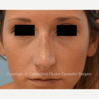 25-34 year old woman treated with Rhinoplasty before 3337792