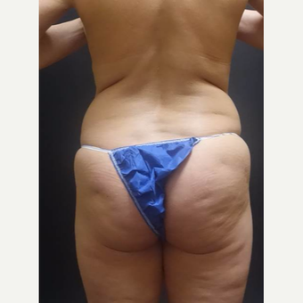 35-44 year old woman treated with Brazilian Butt Lift before 3489382
