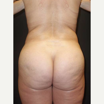 35-44 year old woman treated with Brazilian Butt Lift after 3489382