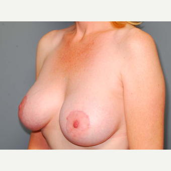 43 y/o Dual Plane Crescent Breast Augmentation after 3065952