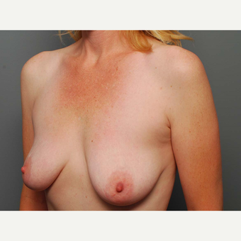 43 y/o Dual Plane Crescent Breast Augmentation before 3065952