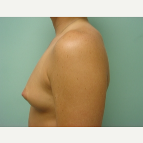 35-44 year old woman treated with Breast Augmentation before 3168186