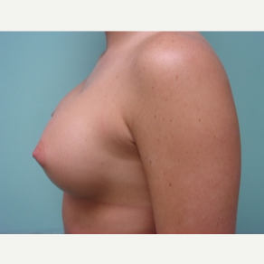 35-44 year old woman treated with Breast Augmentation after 3168186