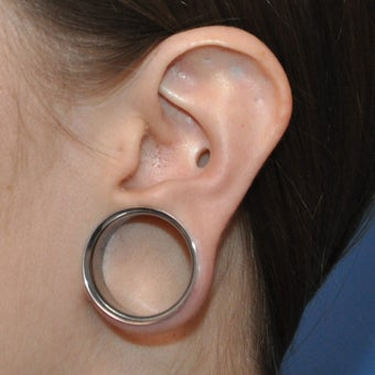 Large gauged earlobe repair 1342661