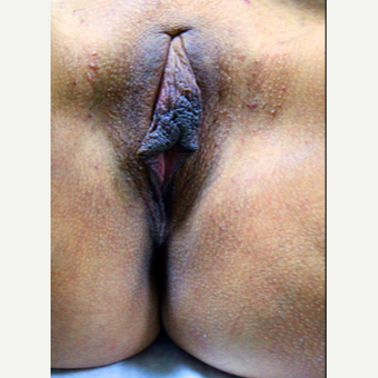 35-44 year old woman treated with Vaginal Rejuvenation before 3146960
