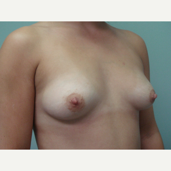 18-24 year old woman treated with Breast Augmentation before 3822911