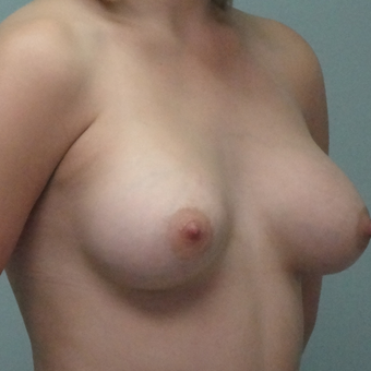 18-24 year old woman treated with Breast Augmentation after 3822911