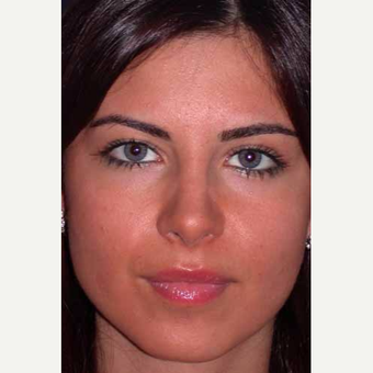 25-34 year old woman treated with Rhinoplasty after 3499754