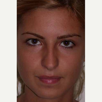25-34 year old woman treated with Rhinoplasty before 3499754