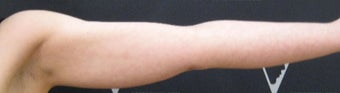 Non-Surgical Fat Reduction of the Upper Arms by CoolSculpting before 3297633