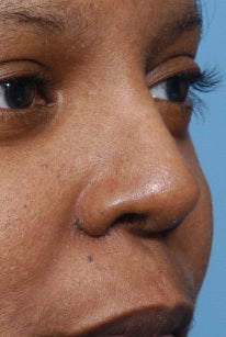 42 Year Old Female Treated For Rhinoplasty Deformity