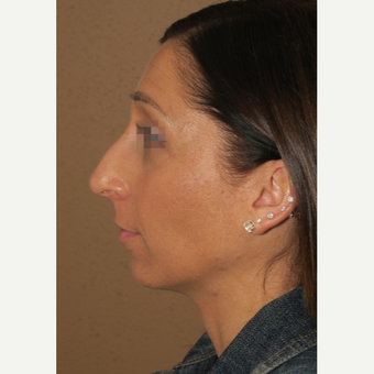 35-44 year old woman treated with Chin Surgery before 3384578