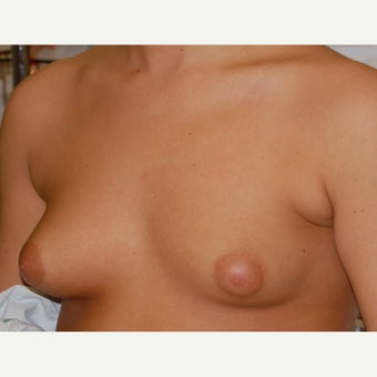 18-24 year old woman treated with Mentor Breast Implants before 2415420