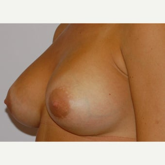 18-24 year old woman treated with Mentor Breast Implants after 2415420