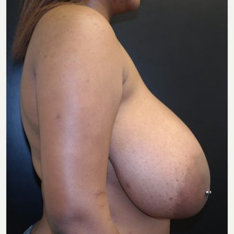 18-24 year old woman treated with Breast Reduction before 2593656