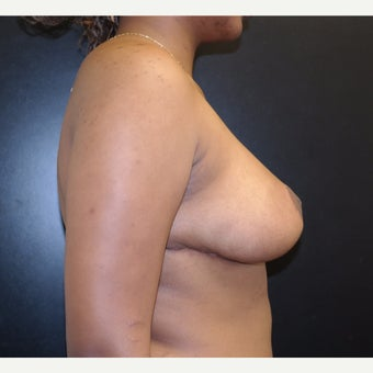 18-24 year old woman treated with Breast Reduction after 2593656