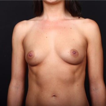 35-44 year old woman treated with Breast Augmentation before 2022977