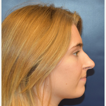 18-24 year old woman treated with Rhinoplasty before 3251923