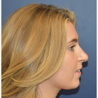 18-24 year old woman treated with Rhinoplasty after 3251923