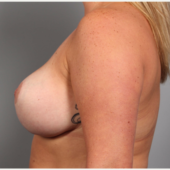35-44 year old woman treated with Breast Lift after 3588564