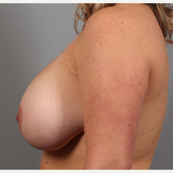 35-44 year old woman treated with Breast Lift before 3588564