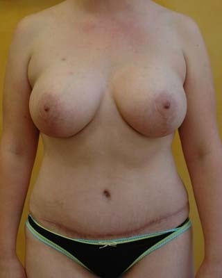 Mommy Makeover: Breast lift with Augmentation & Tummy Tuck