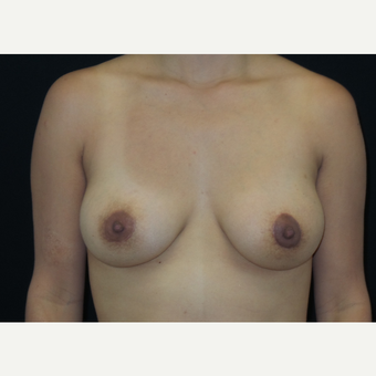 25-34 year old woman treated with Breast Lift with Implants after 3305903