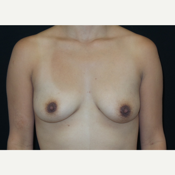 25-34 year old woman treated with Breast Lift with Implants before 3305903
