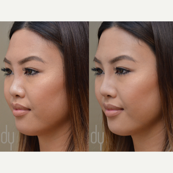 Non Surgical Rhinoplasty before 3322516