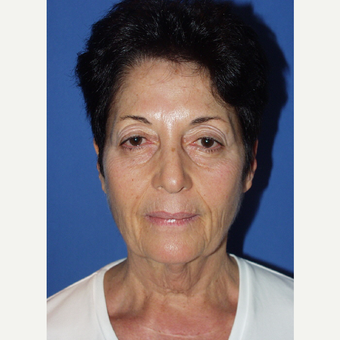 55-64 year old woman treated with Facelift before 3033663