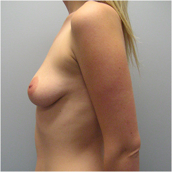 22 year old woman treated with Breast Augmentation before 3468241
