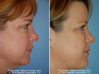 Neck Liposuction before 1389489