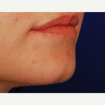18-24 year old woman treated with Radiesse before 3625161