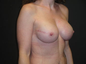 Implant-based breast reconstruction 1266264
