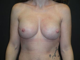 Implant-based breast reconstruction after 1266264