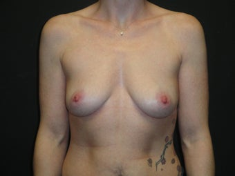 Implant-based breast reconstruction before 1266264