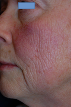 Fractional C02 Laser before 593992