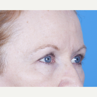 55-64 year old woman treated with Eyelid Surgery before 3471716