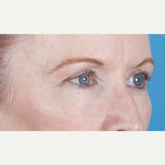 55-64 year old woman treated with Eyelid Surgery after 3471716