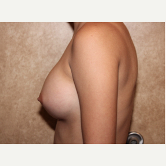 Saline Implants - Breast Augmentation after 3324973