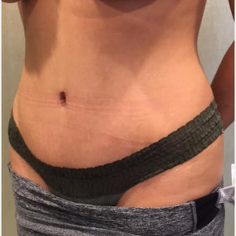 Drainless or No Drain Tummy Tuck after 3737965