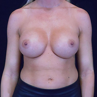 25-34 year old woman treated with Breast Augmentation after 3203130
