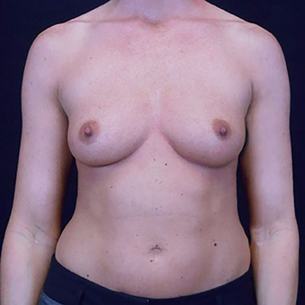 25-34 year old woman treated with Breast Augmentation before 3203130