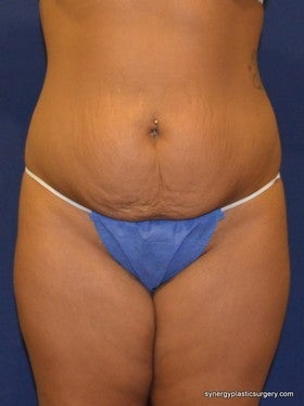 Tummy Tuck before 1115437