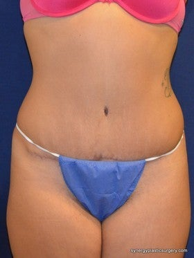 Tummy Tuck after 1115437