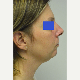 45-54 year old woman treated with Kybella before 3187156