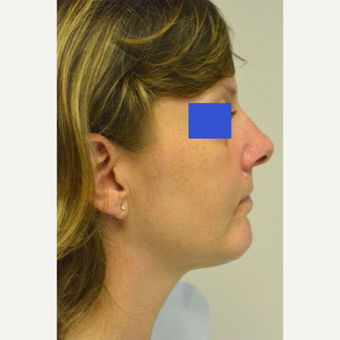 45-54 year old woman treated with Kybella after 3187156