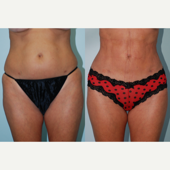 18-24 year old woman treated with CoolSculpting before 3415364