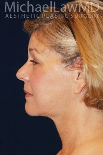 55-64 year old woman treated for SMAS Facelift after 1534796
