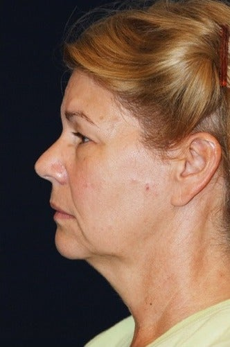 55-64 year old woman treated for SMAS Facelift before 1534796